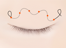 BƯỚCs for Non-incision Double Eyelid Surgery Method